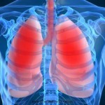 Asthma and Respiration Effects Related To Chlorine Info by Go Chemless