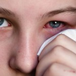 Chronic Dermatological and Ocular Infections from Chlorine Exposure.